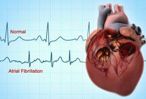 webmd_rf_photo_of_atrial_fibrillation